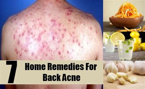 back acne treatment picture 9