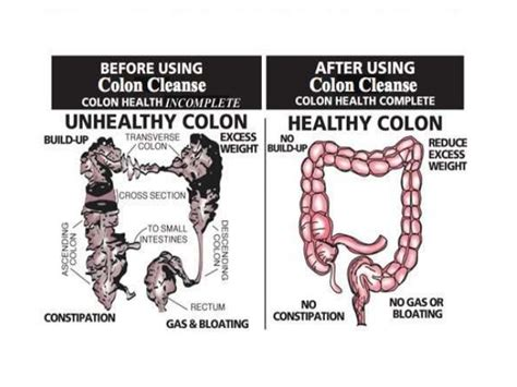 colon cleansing and ragwood allergy picture 2