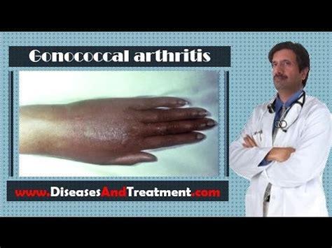 arthritis o rayuma picture 10
