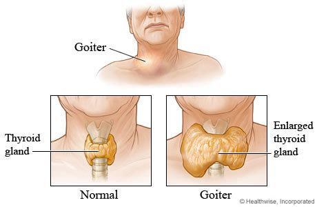 can goiter grow on thyroid hormone picture 14