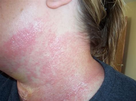 hives and borderline low thyroid picture 9
