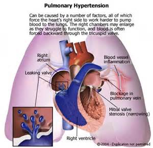 pulmonary hypertension picture 1