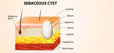 natural healing of pilar cysts picture 5