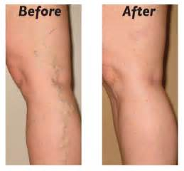 leg pain and hair loss picture 17