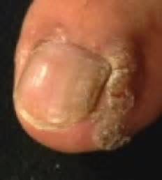 virus wart picture 2