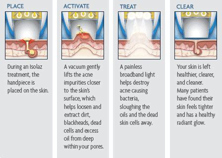 does an skin laser really work picture 11