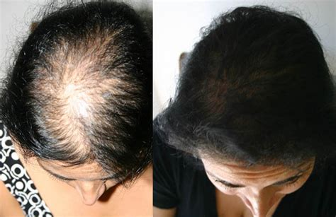 alapica female hair loss picture 7