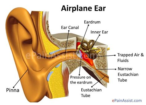 chroic ear pain twinge picture 1
