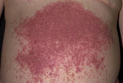 skin diseases picture 10