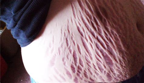 do man think stretch mark are ugly picture 3