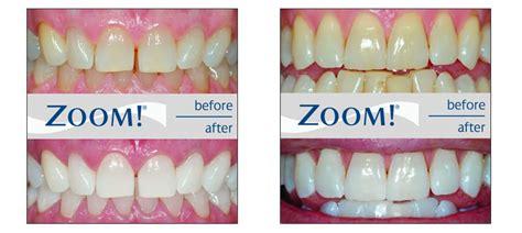 ten top bleaching gels that work similar to picture 3