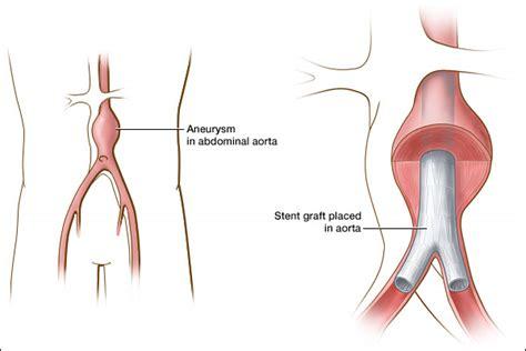liver cancer blog picture 10