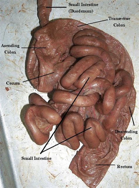 anatomy colon picture 11