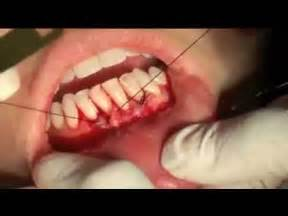 oral skin removal surgery picture 3