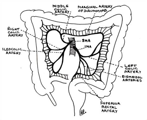 nonrotation of bowel and small mesenteric artery picture 2