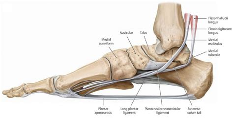 charcot joint picture 11