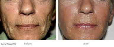 msm cream for pitted acne scars picture 6