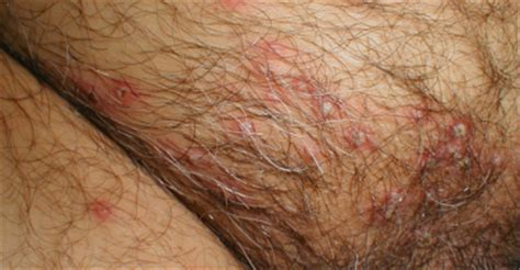how is genital herpes contracted picture 7