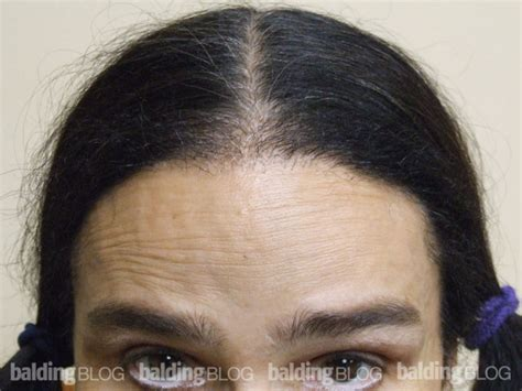 correct hair thinning in women picture 2