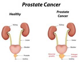 Iceberg lettuce and prostate cancer picture 1