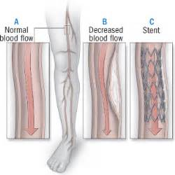 skin boils and artery stents picture 14