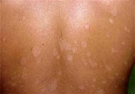 fungal skin infection picture 5