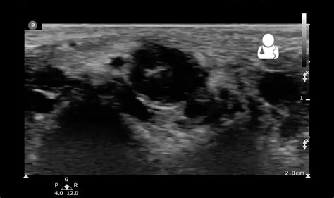 penis examination and ultrasound picture 7