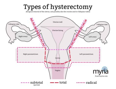 aging after full hysterectomy picture 17