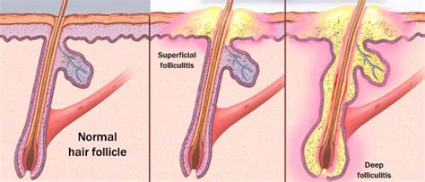 what causes hemorrhoids picture 13