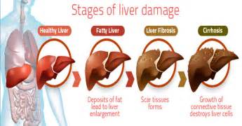 liver ailments and symptoms picture 9