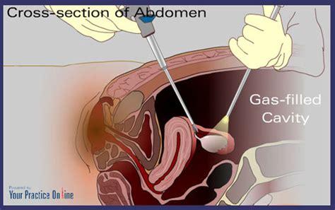 surgeryhttp rsapc1 laparoscopic surgery laparoscopic colon repair picture 18