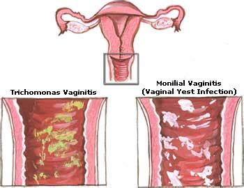 can you get pregnant while you have a yeast infection picture 4