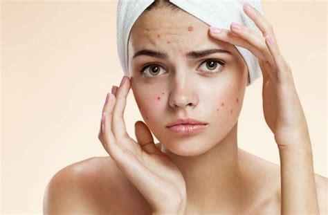 cure for red spots from acne picture 15