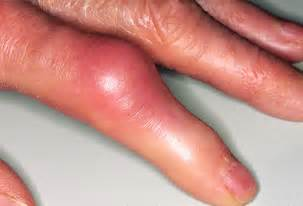 gout in a thumb joint picture 1