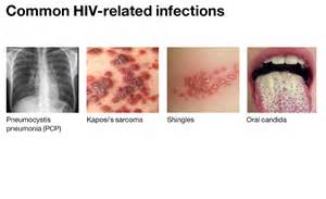 persistant yeast infection unrelated to hiv picture 2