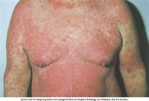 drug interaction sore's on skin picture 9