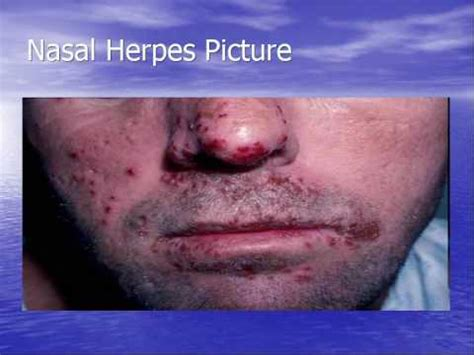 face herpes pictures picture 14