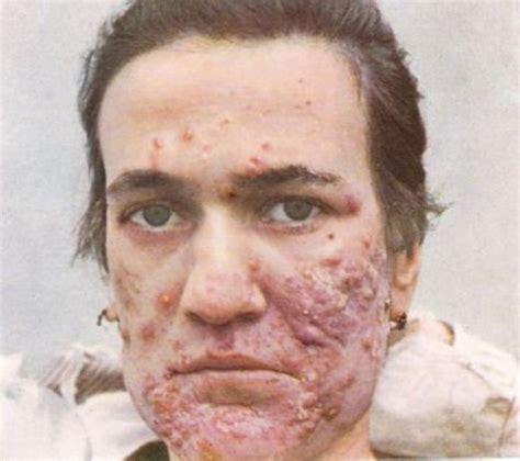 vitamin a acne picture 1