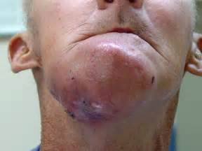 severe liver diseases picture 7