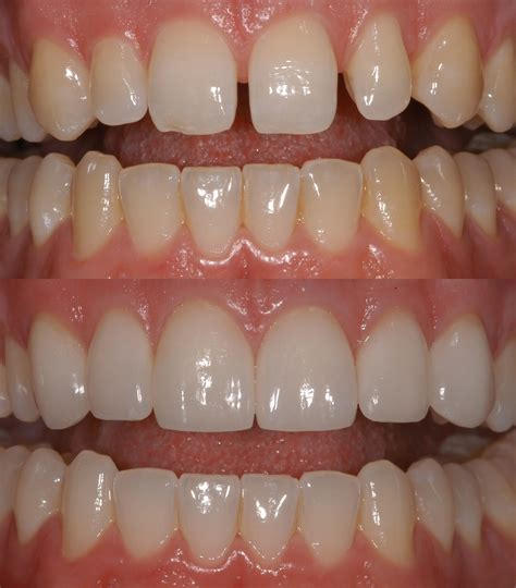 childrens teeth discoloration and veneers picture 1