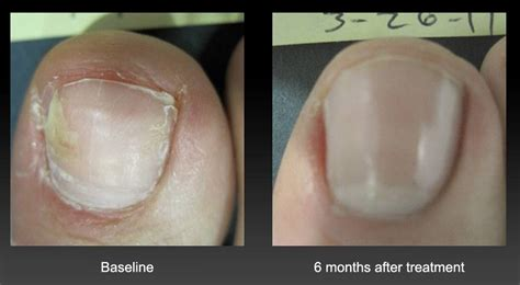 yellow thick toenail picture 7