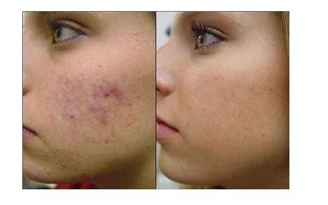 co2 spray acne picture 11