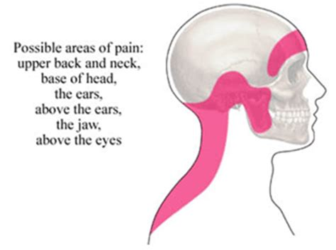pain relief for ear ache picture 13