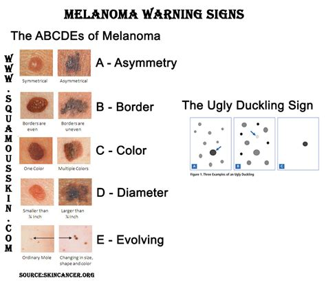 skin cancer warning signs picture 6