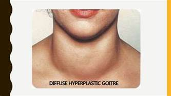 goiter with diffuse thyroid gland heterogeneity picture 7