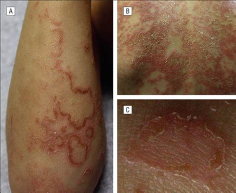 butyrate skin plaque picture 3