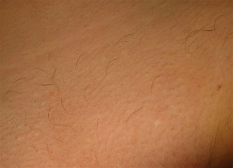 laser pubic hair removal picture 3