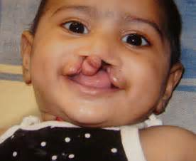 pictures of cleft lip and pallate picture 3
