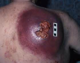 herpes causing leg pain picture 10