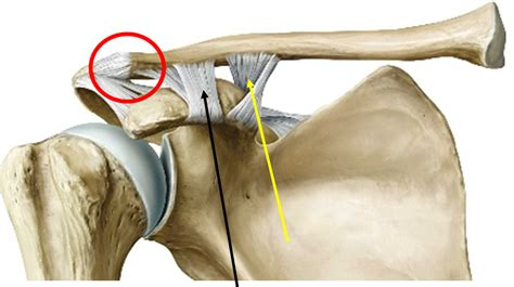 acromio-clavicular joint picture 17